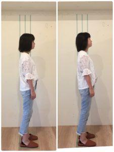 京都市 中京区 四条大宮 藤枝整骨院 20代女性 の 施術例です