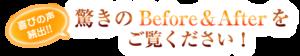 京都市 藤枝整骨院 ビフォーアフターをご覧ください