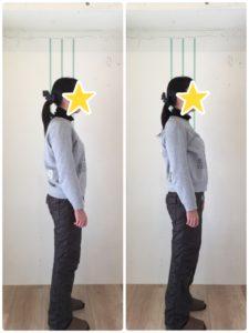 京都市 中京区 四条大宮 藤枝整骨院 30代女性の施術例