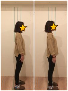 京都市 中京区 四条大宮 藤枝整骨院 20代女性 施術例