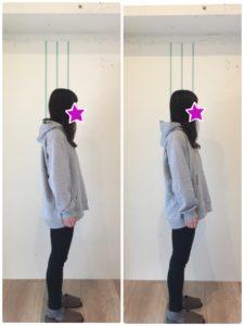 京都市 中京区 四条大宮 藤枝整骨院 姿勢矯正 20代女性