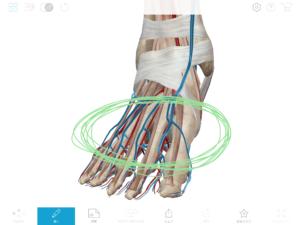 京都市 中京区 藤枝整骨院 右足の指先の動脈と静脈の吻合部分の画像です