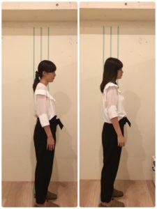 京都市 中京区 四条大宮 藤枝整骨院 20代 女性の施術例です