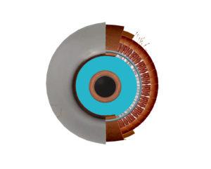 京都市 中京区 藤枝整骨院 左目の瞳孔散大筋の部分を青くしている画像です