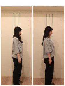 京都市 中京区 四条大宮 藤枝整骨院 20代女性 の 施術例 です