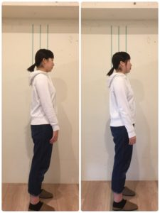 京都市 中京区 四条大宮 藤枝整骨院 10代女性 の 施術例 です