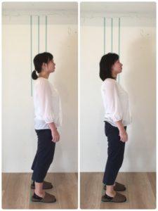 京都市 中京区 四条大宮 藤枝整骨院 30代女性 の 施術例 です