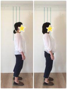 京都市 中京区 四条大宮 藤枝整骨院 姿勢矯正 20代 女性