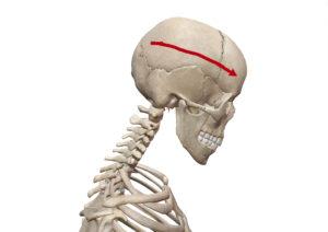 京都市 中京区 四条大宮 藤枝整骨院 頸椎の経度屈曲時の状態を右側から見た画像です。