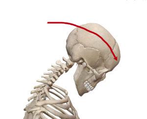 京都市 中京区 四条大宮 藤枝整骨院 頸椎の完全屈曲時の状態を右側面から見た画像です。