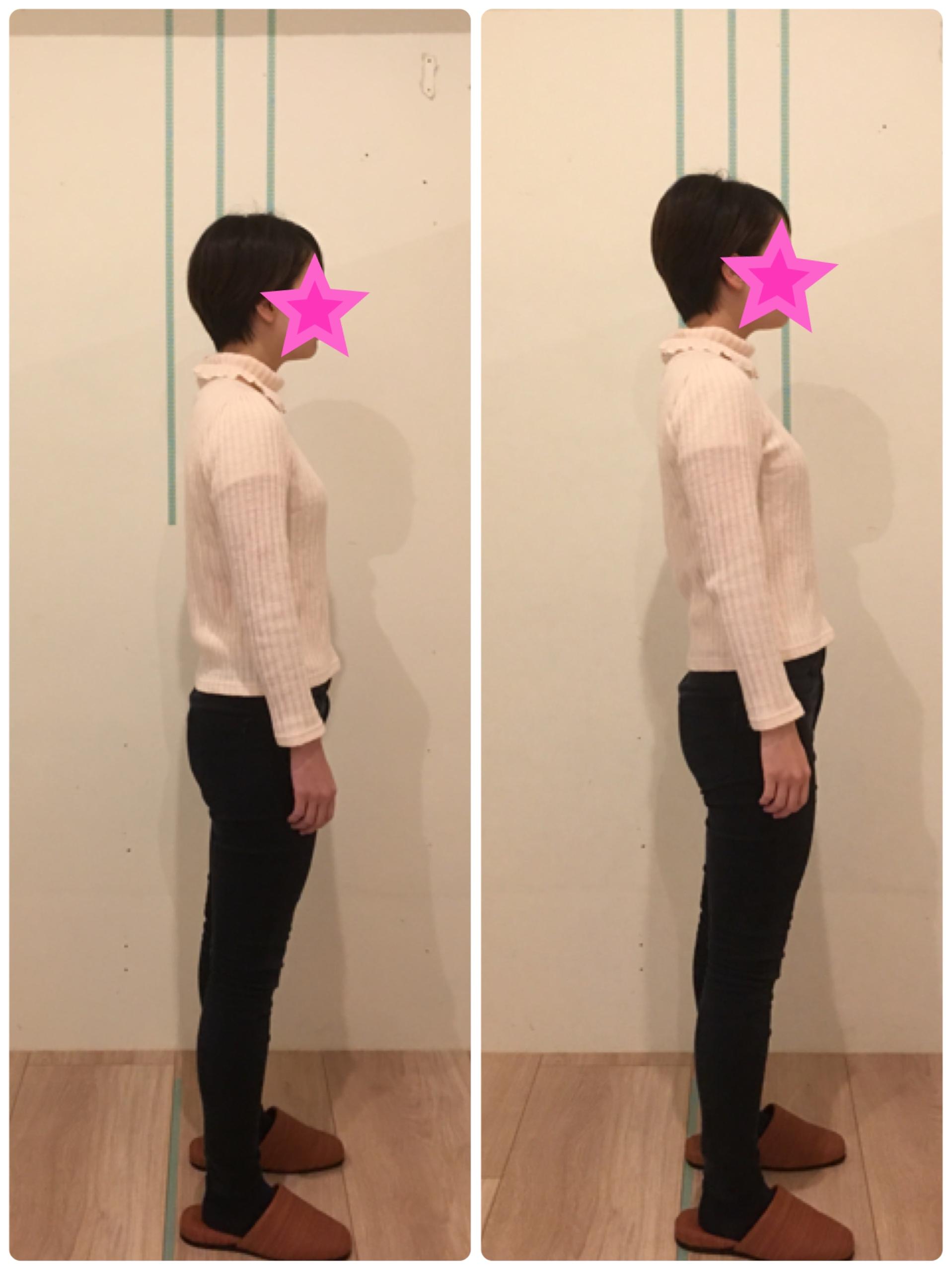京都市 中京区 四条大宮 藤枝整骨院  20代女性 姿勢矯正