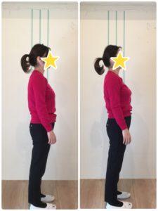 京都市 中京区 四条大宮 藤枝整骨院 30代女性 施術例