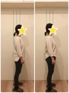 京都市 中京区 四条大宮 藤枝整骨院 姿勢矯正 30代女性