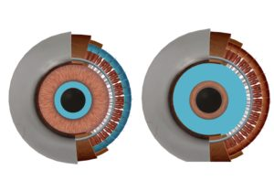 京都市 中京区 四条大宮 藤枝整骨院 左側が瞳孔括約筋と毛様体筋を正面から見た図で、右側が瞳孔散大筋を正面から図です。